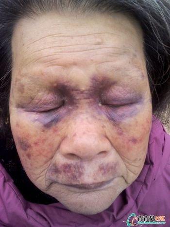 高清图—老人去青岛黄岛区藏南镇马栏村村支书家说理被暴打灌尿