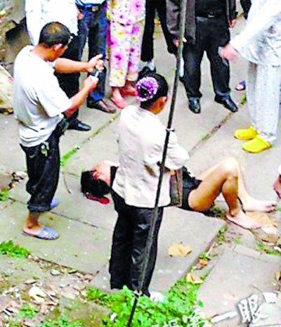 男子跳楼逃生头部坠地受重伤 曾经历汶川地震