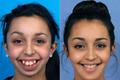 女孩8岁时下巴停止生长 矫正手术后美得不敢认