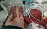 贵州早产女婴仅有成人手腕大 奇迹存活