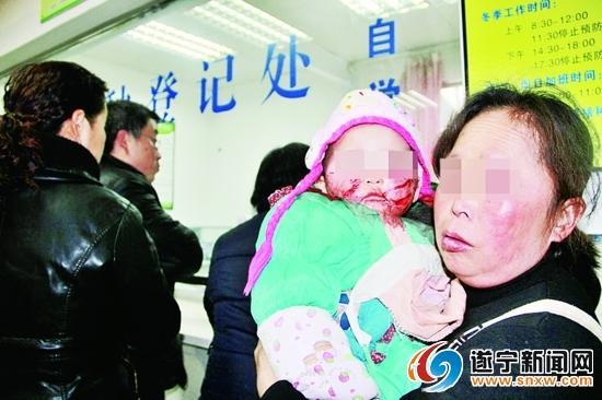 1岁女童被自家狗咬伤 脸上缝合20针