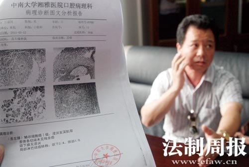 嗜好嚼槟榔的凌建军因患口腔癌导致右侧口腔内侧被切除.图片