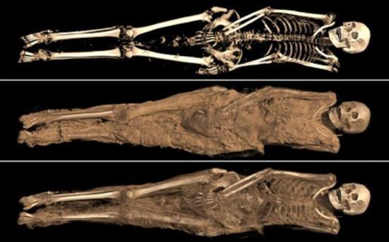 大英博物馆木乃伊接受医学扫描 被检出牙痛心脏病(组图)