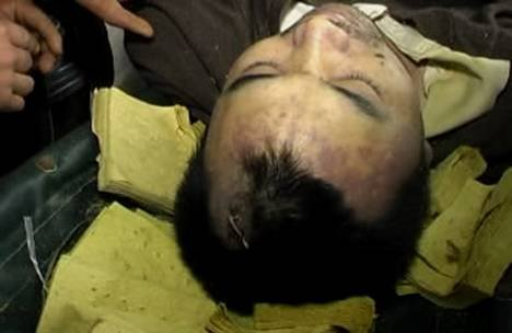 尸体解剖_司法鉴定中心出具的尸体解剖报告对钟梓宁的死因作了如下解释:死者