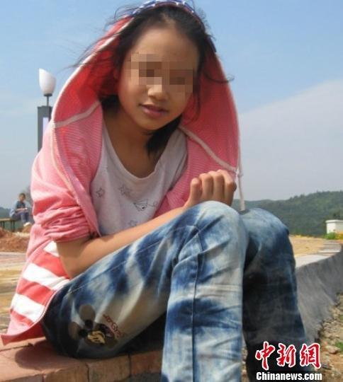 江西13岁女孩患怪病 江西女孩患怪病 江西女孩手指枯死腿脚