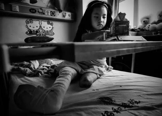 2008年6月12日,武汉协和医院。汶川地震中受伤左腿截肢的7岁女孩梁可馨在病床上拼房子积木。