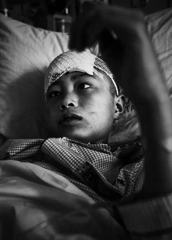 2008年5月28日,武汉市同济医院。汶川地震中脑外伤一时失语的14岁的姜刘躺在病床上。