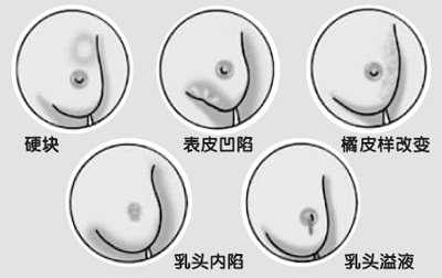每个女性都希望拥有一对丰满而富有弹性的乳房