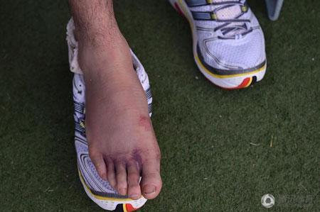 孙可因脚伤缺席数天对抗训练