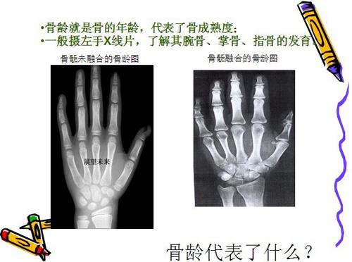 测骨龄就是通过手掌X光片确定被测者骨年龄