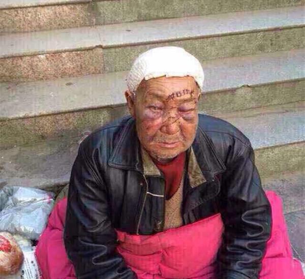 河南一流浪老人遭醉汉群殴,眼睛几乎失明