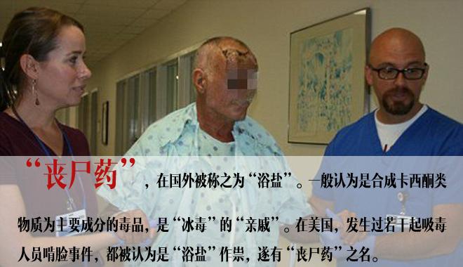 """图片为美国一个""""啃脸案""""的受害者接受治疗"""