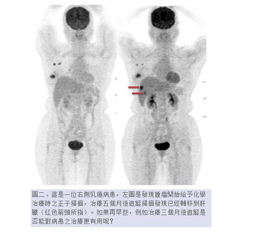 如这篇台湾医学论文截图里的用法,PET-CT技术主要在癌症治疗中大显身手