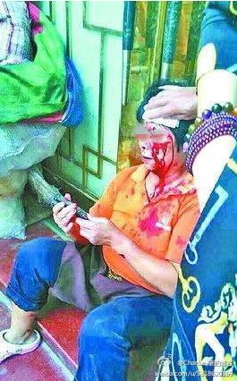 因上厕所插队,一妇女在鼓浪屿被游客拍砖至头破血流 图片来源:网络