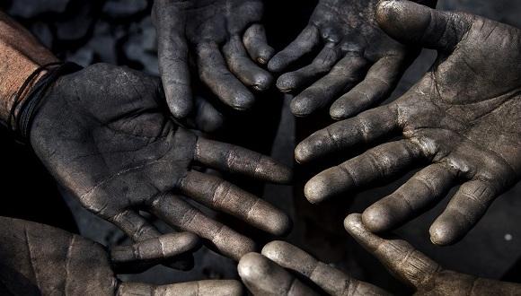 我国尘肺病患者中有60%是矿工