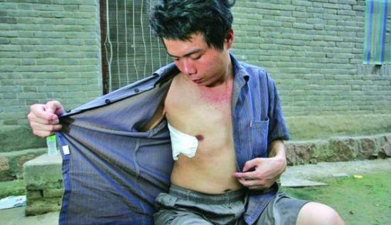 """2004年,尘肺病患者张海超因为得不到官方的鉴定认可,而""""开胸验肺""""自证其病"""