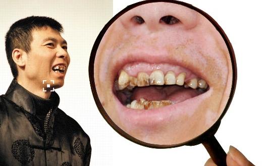 冯小刚导演的牙,看起来非常惊悚。图片来源:《达尔文与冯小刚》一文