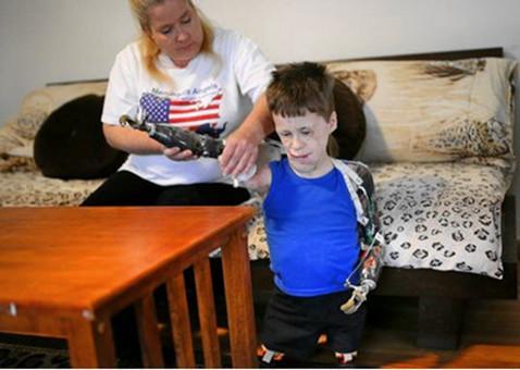 Jeremiah小时候未接种脑膜炎疫苗,后来不幸感染脑膜炎,被迫截除四肢