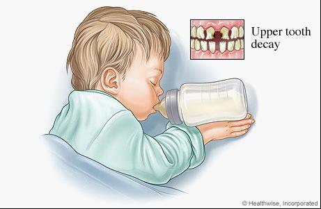 """很多含糖的食物或饮料都会引发""""奶瓶龋"""",但6个月以前乳牙未长出的宝宝不必担心。"""