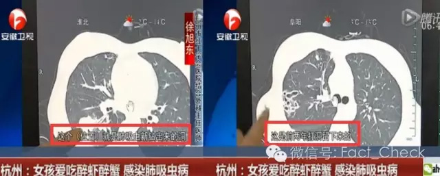 安徽卫视报道截图