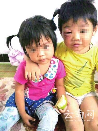 被亲生父亲殴打的两个小朋友。图片来源:云南网