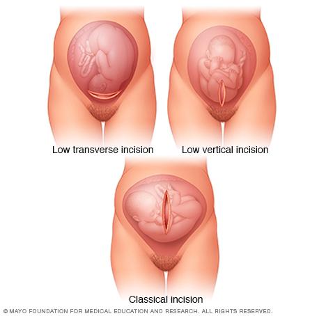 曾经大量滥用的剖宫产也为生育二孩带来更多风险