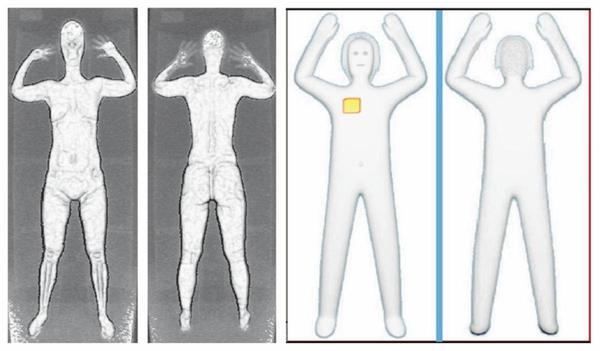 左图X射线安检仪的成像,右图为毫米波安检仪的成像