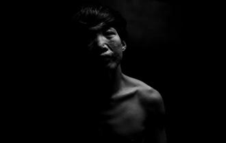 毁容少年18年换脸16次_中国人的一天_腾讯新闻_腾讯网