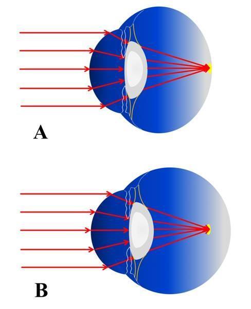 (A)正视眼示意图,光线聚焦于视网膜上;(B)近视眼示意图,光线聚焦于视网膜前