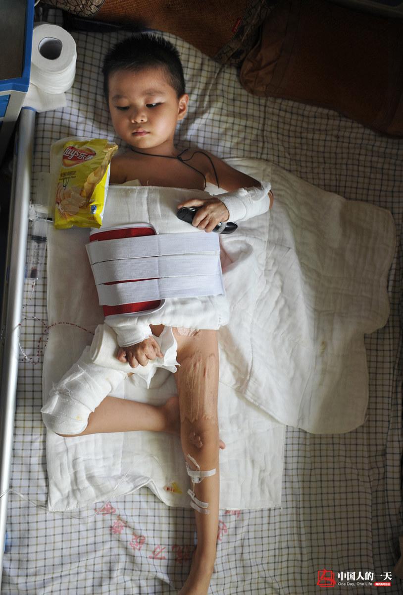 中国人的一天第3208期:被火伤害的留守儿童