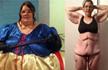 她猛减了280斤,瘦了却生不如死