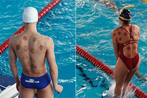 2018雅加达亚运会:游泳选手热衷拔罐 中医秘方很流行