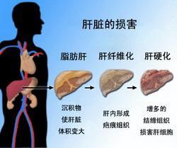 为什么肝脏一发现问题就是晚期