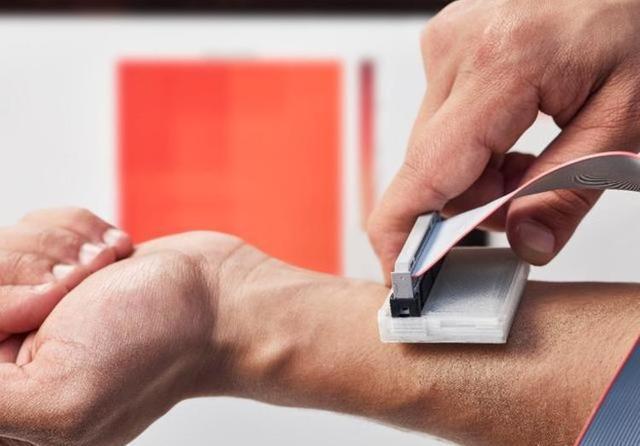 这个能检测皮肤癌的小东西 拿下了今年的戴森设计大奖