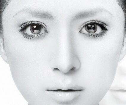欧式芭比眼之双眼皮手术 适应人群: 额头向前突出明显,眉弓高.图片