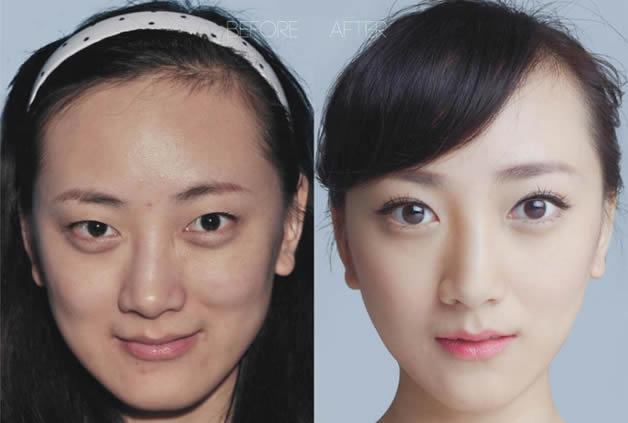 上海华美医院削骨专家为你揭开明星小V脸的秘密