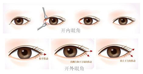 手术时间:30-40分钟 与双眼皮手术一起做,放大眼睛图片