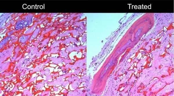 关键蛋白质或可调节制造骨质结构的重要细胞