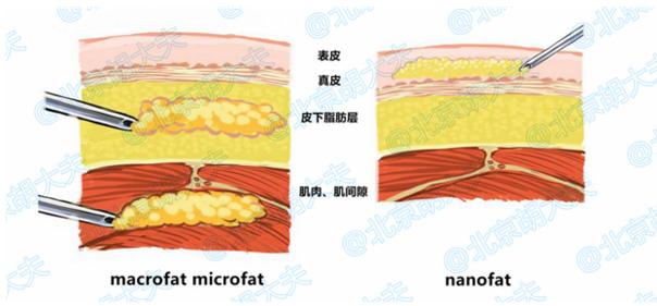 部脂肪_娱乐 社区 图说上海 挑战编辑部  据上海华美李健院长介绍,传统的脂肪