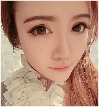 上海华美全明星打造,精致欧式芭比眼整形手术