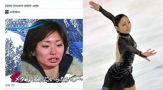 花滑美女被曝整容前照片 网友:很难再看下去