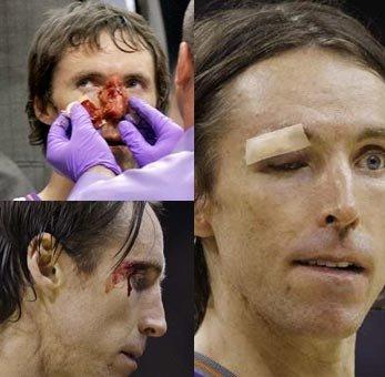 纳什鼻骨移位需手术 太阳当家第四战不会缺席