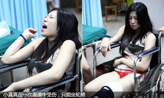 小真真在一次表演中受伤,只能坐轮椅