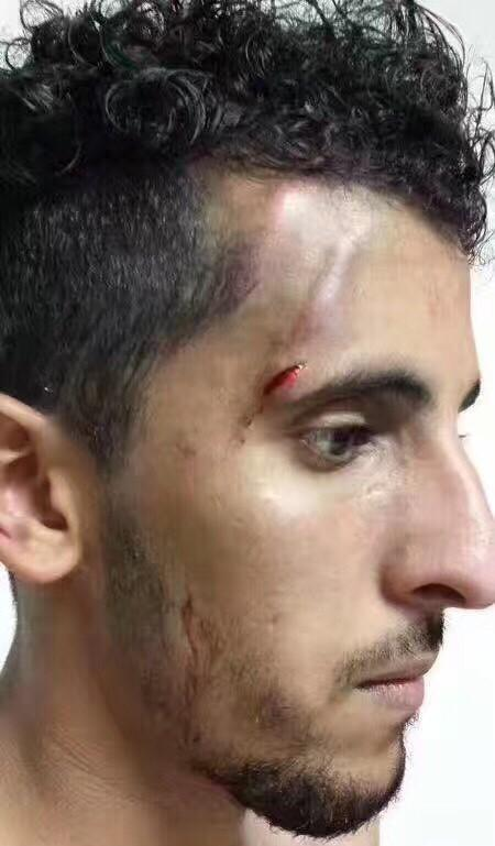 野球场暴力不断!外籍球员自曝遭10人关门殴打