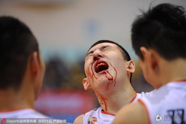 八一重见血性小将血洒赛场:鼻子骨折 没事儿