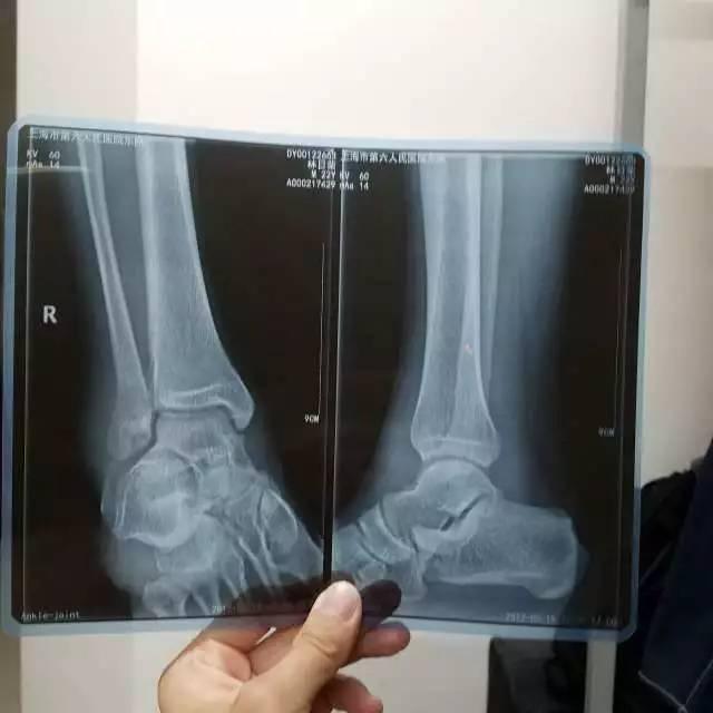 大学篮球赛竟也有垫脚!受伤者骨裂倒地惨叫