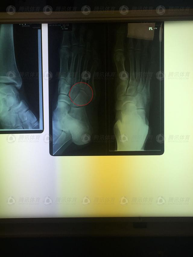 独家-孙杨澳洲特训右脚意外骨折 估计6周痊愈
