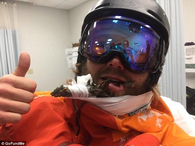 惊险!美国滑雪教练遇意外 嘴唇被树枝刺穿