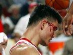组图:NBA赛场血腥场面盘点 大姚阿联均在列