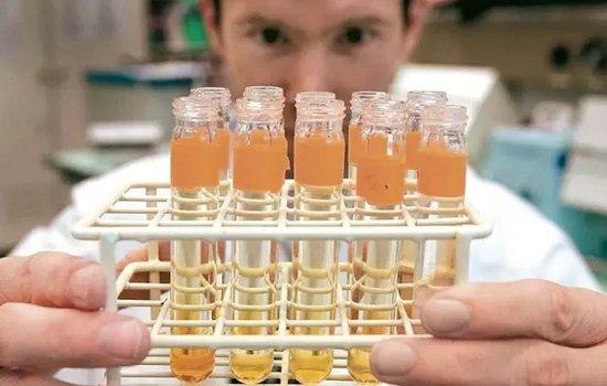 俄罗斯实验室的尿液样本